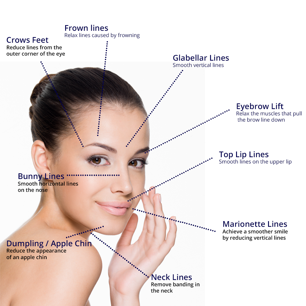 BOTOX® Cosetic examples of use on womans face