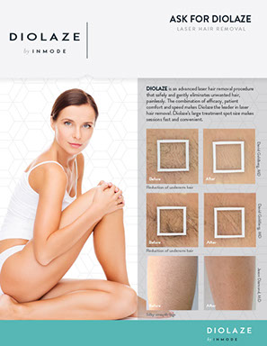 Diolaze model and samples of performance for laser hair removal