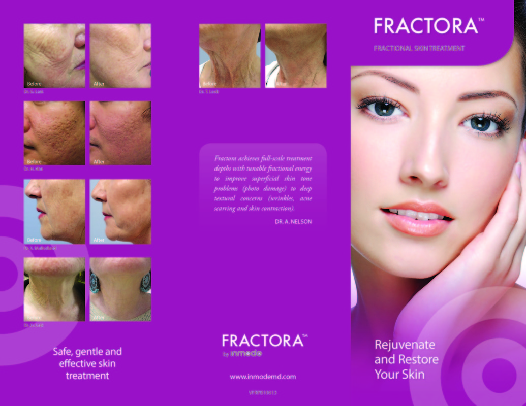 Fractora by Inmode before and after images