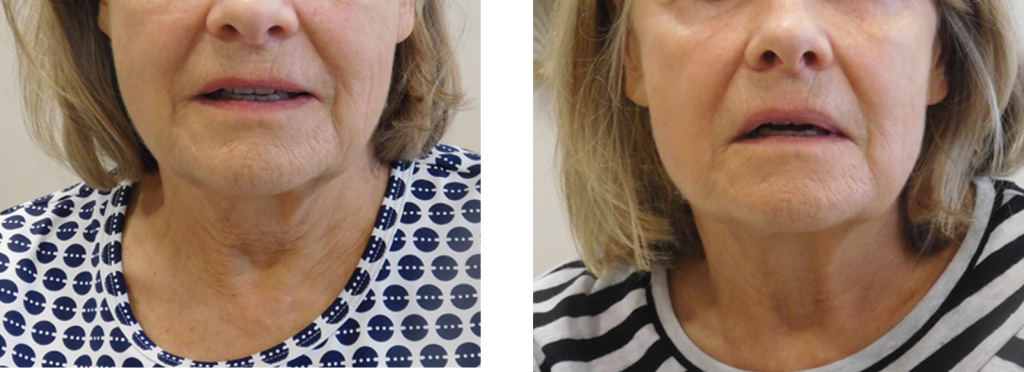 Fractora before and after