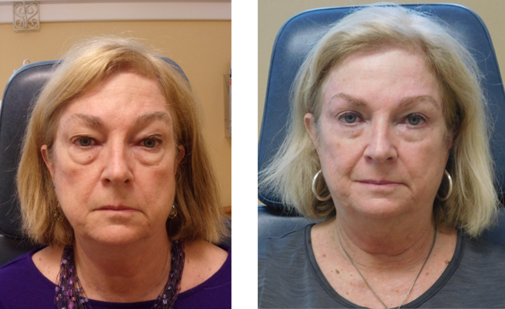 before and after upper and lower eye lid brow lift