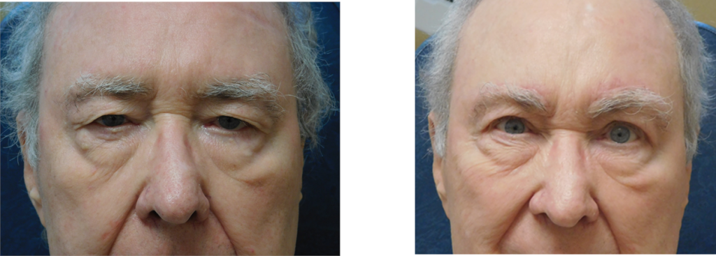 before and after upper eye lid brow lift