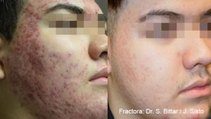 Example of acne scar treatment