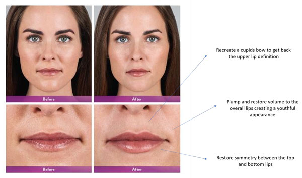 Lip Filler Explanation and Before and After